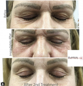 Plamere Plasma Pen Pro (PPP) Eyelid and Eyebrow Lift Before and After