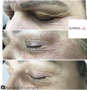 Eyebrow and Eyelid Lift Before and After by Plamere Plasma Pen Pro (PPP)