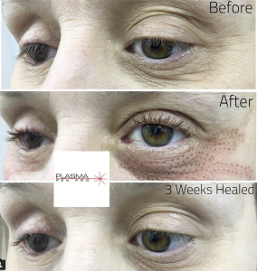 Plasma Pen Eyelid Lift Training by Plasma Pen Pro