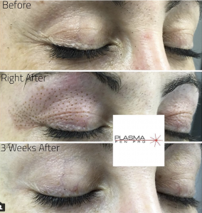 Plasma Pen eyelid lift and under eye lift by rose cruz