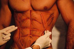 Haute Couture Body - Sixpack Surgery