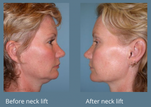 Hove Center for Facial Plastic Surgery is highly respected for beautiful, natural-looking neck lift results.