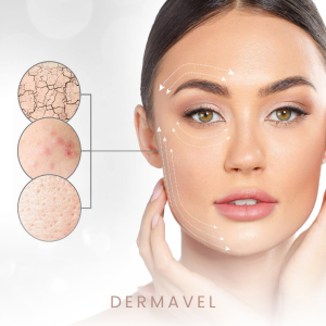 Dermavel, is pleased to announce the launch of its innovative and affordable mole & skin tag remover product, the Dermavel Plasma Pen, which utilizes the world's most advanced technology.