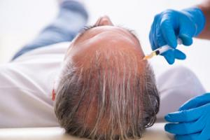 Hair Restoration Services Market
