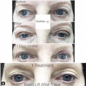 Plamere Plasma Fibroblast Eyelid Lift Treatment by Plasma Pen Pro (PPP)