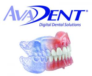 Avadent Digital Dentures
