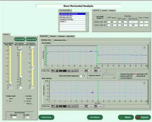 VEST™ operating and neurotologic analysis software screenshot.