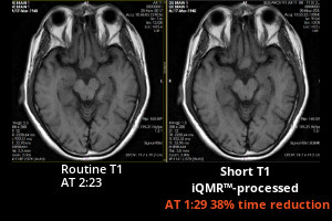 Medic Vision iQMR 38% brain MRI scan time reduction