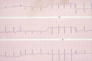 Atrial Fibrillation Market (Product Type - Access Devices, Cardiac Monitors, EP Ablation Catheters, EP Diagnostic Catheters, EP Mapping & Recording Systems, LAA Closure, and Other Products; End-user - Hospitals, Electrophysiology Labs, and Ambulatory Surg